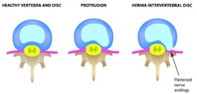 Disc Injuries