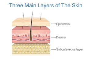 Main layers of the skin